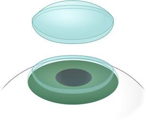 Digital image of a corneal transplant