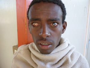 Blind Ethiopian ready for treatment