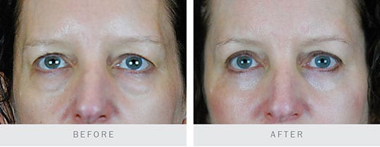 Before and After Photo: Bilateral Upper and Lower Lid Blepharoplasty, Browplasty