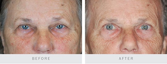 Before and After Photo: Bilateral Upper Eyelid Ptosis Repair