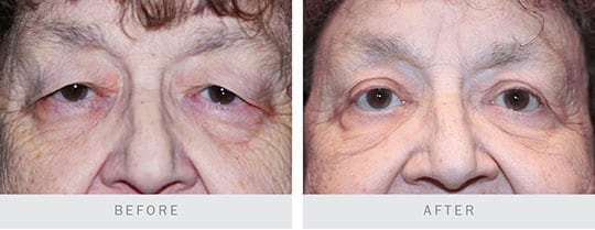 Before and After Photo: Bilateral Upper Lid Blepharoplasty