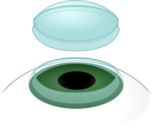 Digital illustration of a corneal FEMO transplant
