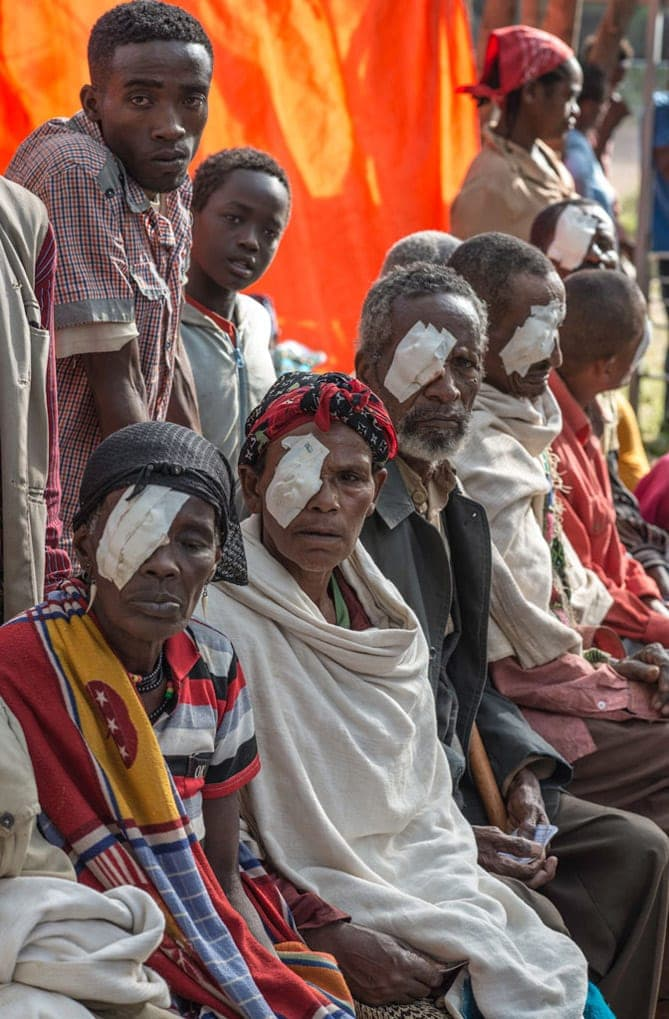 Group of Ethiopian patients recovering from eye treatment